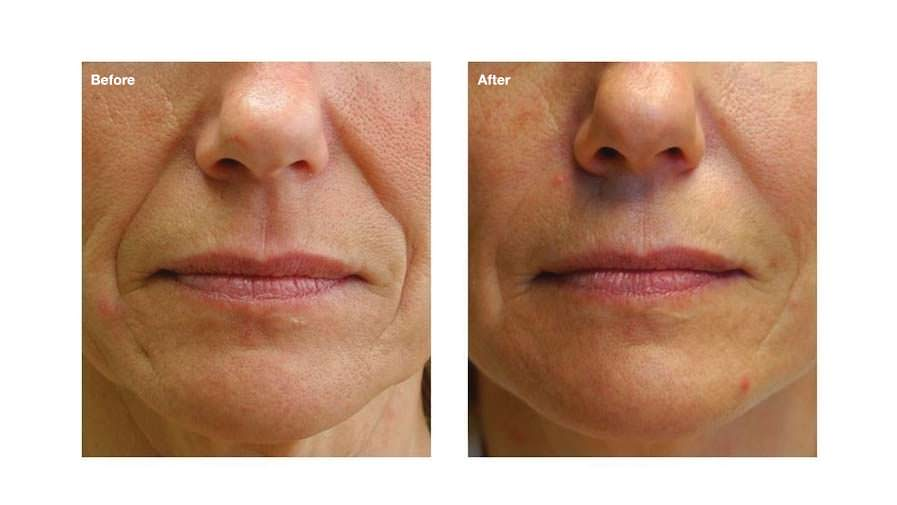 Non surgical facelift options B and A