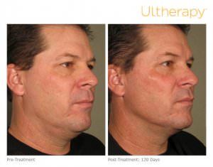 ultherapy-0058d_before-120daysafter_full1