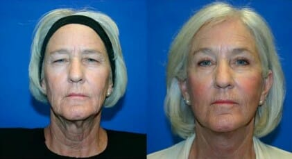Fort Myers Eyelid Surgery Before and After