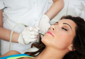 Microneedling Treatment Fort Myers