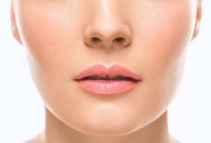 Chin Implant Surgery Fort Myers