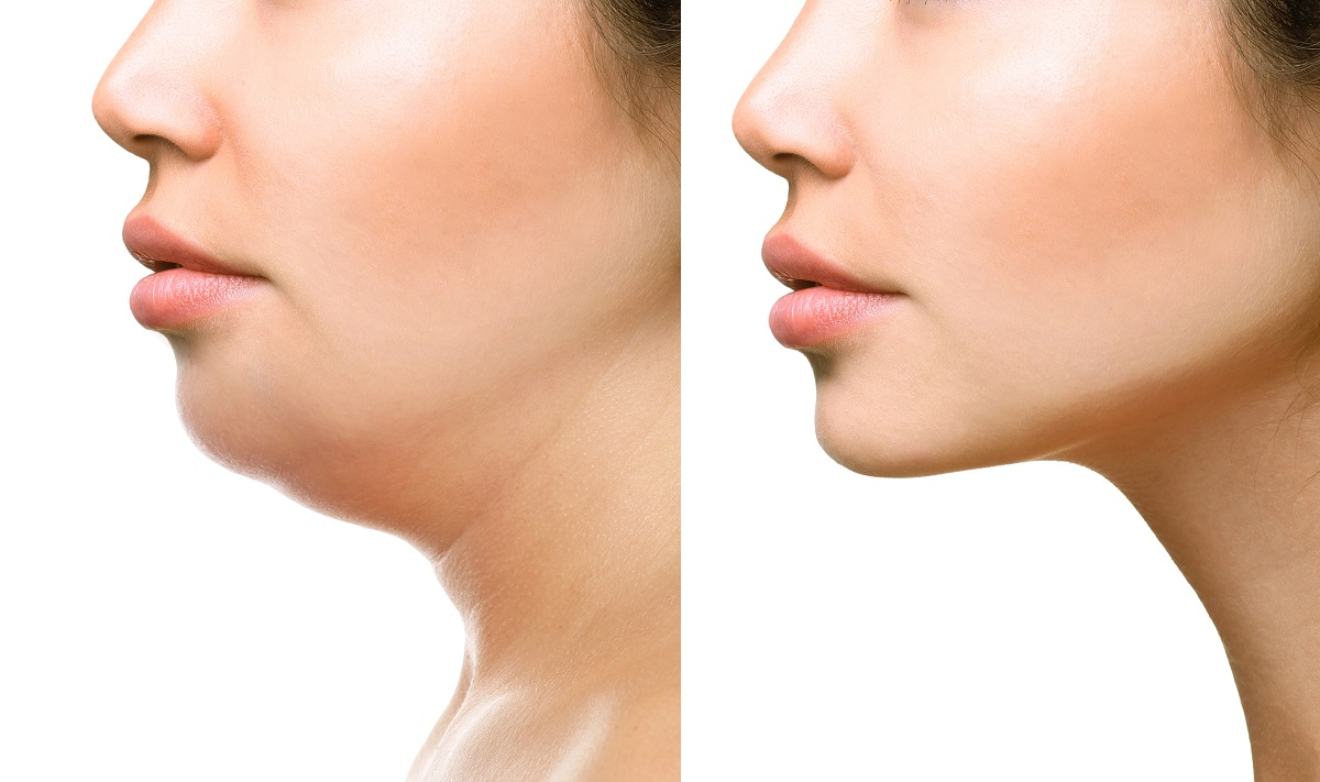 Non-Surgical Facial Rejuvenation in Fort Myers