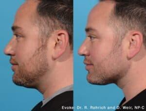 Evoke Facial Rejuvenation in Fort Myers