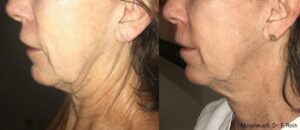 Radio-Frequency Microneedling Fort Myers
