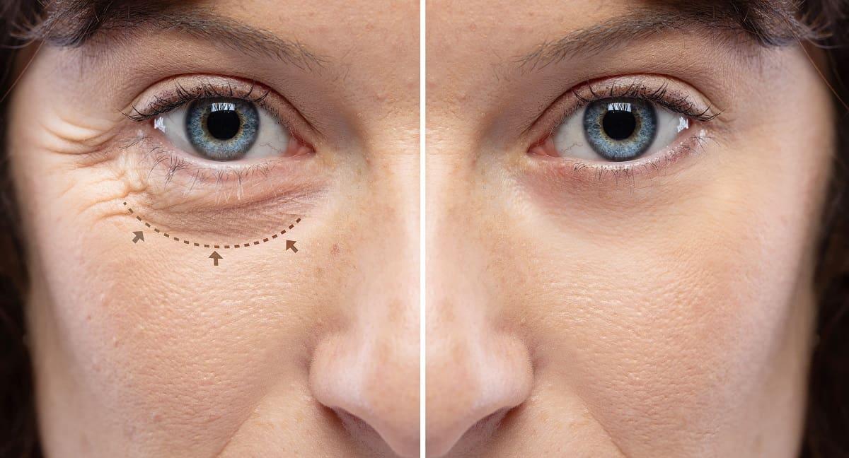 Eyelid rejuvenation in Fort Myers, FL